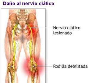 nervio_ciatico