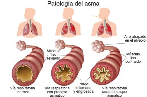 patol-asma