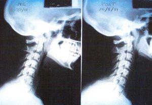 Corrección latigazo cervical con sesiones de quiropráctica