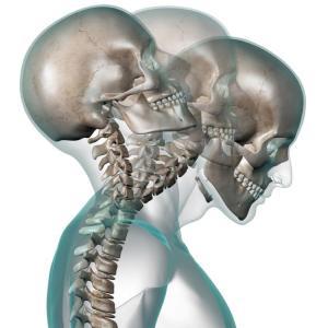 Conoce los beneficios de la quiropráctica para corregir lesiones por latigazo cervical,
