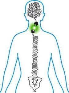 La subluxación vertebral y la quiropráctica