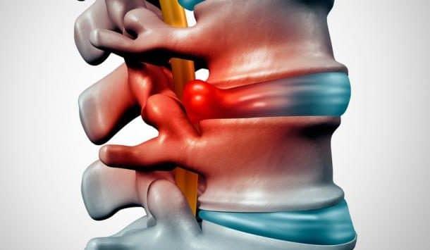 La hernia discal y la quiropráctica parte uno