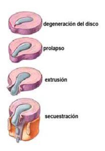 etapas hernia discal