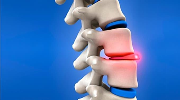 hernia discal hernia de disco