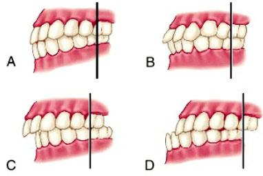 Mala oclusión dental. Relación entre los dientes y el dolor cervical