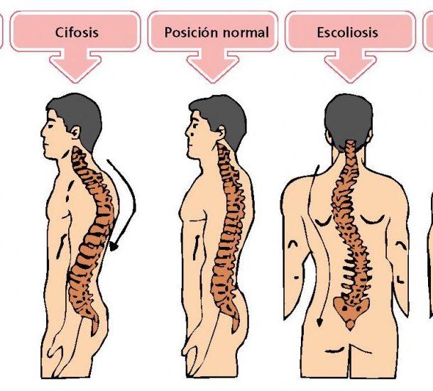 Anatomía de la columna vertebral (I). Curvaturas.