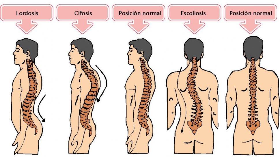 Anatomía de la columna vertebral (I). Curvaturas