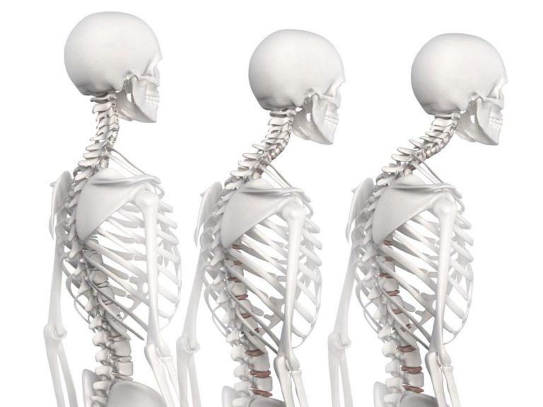 Quiropráctica y cifosis dorsal