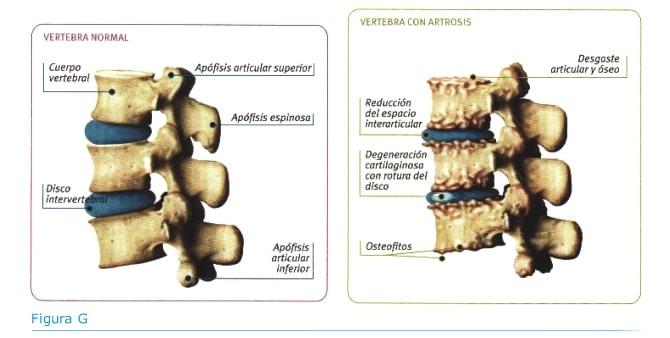 Artritis y quiropráctica