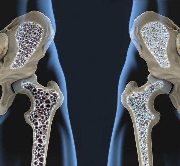 Osteoporosis y Quiropráctica